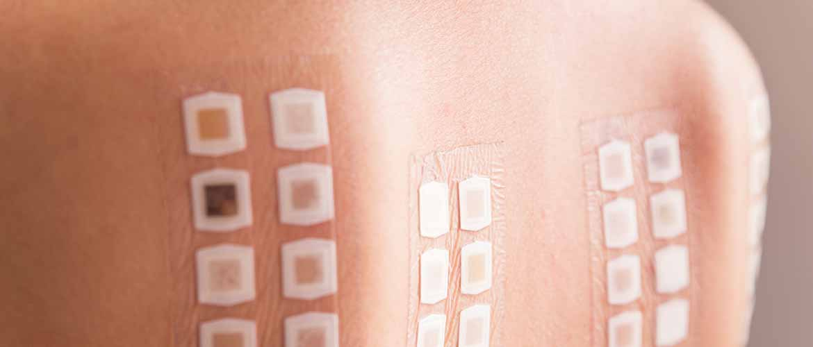 allergy patch test on the back of a young woman