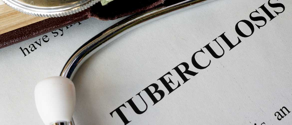 a stethoscope laying across a piece of paper that says tuberculosis