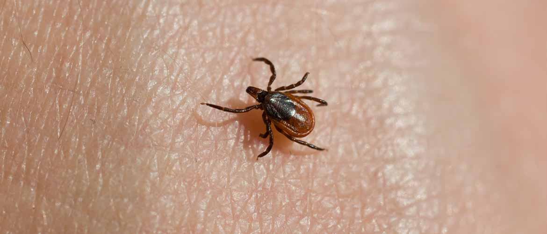 a tick on human skin