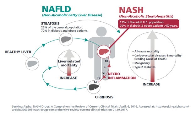 New blockbuster drug class what we do know is that nash is one of the leading causes of cirrhosis in adults in the united states8 nash is now the second most common cause for liver ccuart Gallery